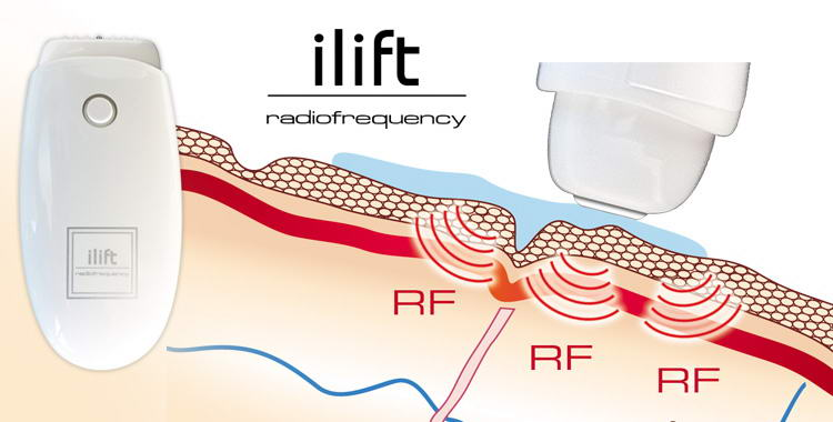 ilift radiofrequency risultati
