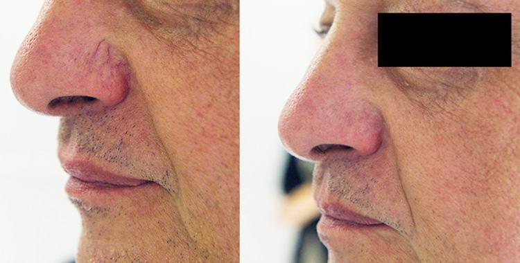 Eliminare i capillari del viso con il laser.