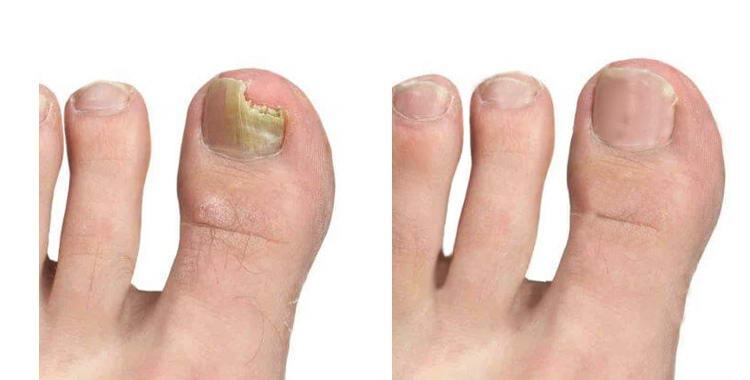 Trattamenti di un fungo tra risposte di carbonato di sodio di dita del piede